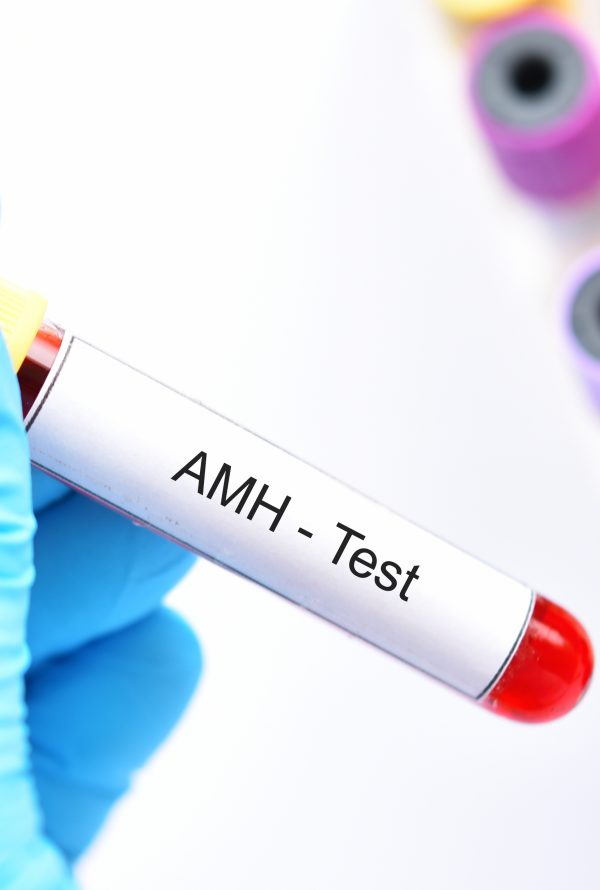 AMH Fertility